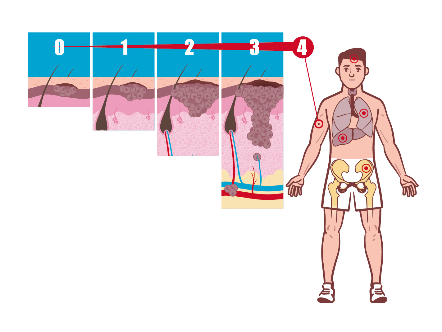 Vivio :: Atlas médical mélanome