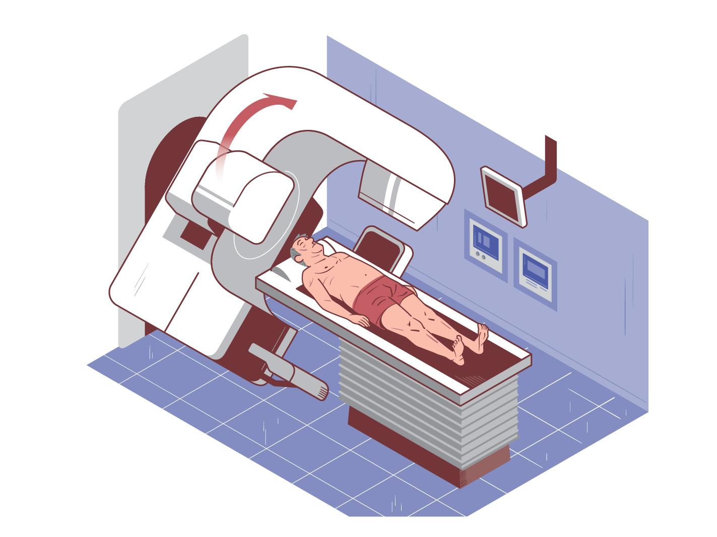 Vivio :: Atlas médical cancer colorectal